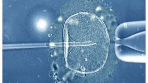 in_vitro_fertilization_light_microscope-spl